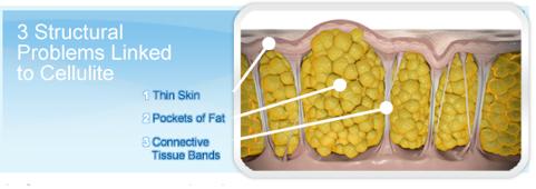 Figura 1: Os 3 problemas estruturais da celulite: bolsas de gordura inflamadas, traves fibróticas e pele com pouco colágeno.